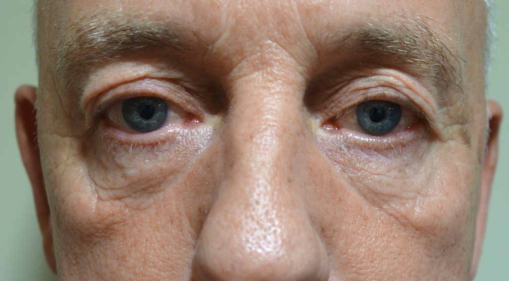 Reasons Why More Men Are Considering Male Nose Surgery