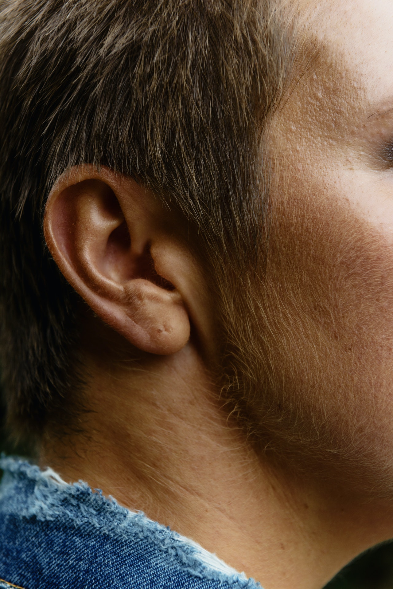 3 Possible Benefits From Getting Your Ears Pinned Back