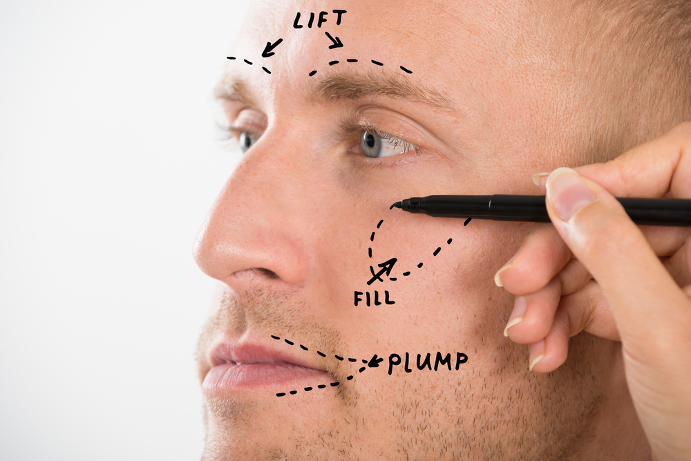 patient with drawings on face to prepare for surgery