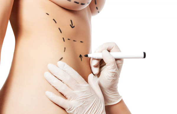 image of woman with pen marks ready for surgery