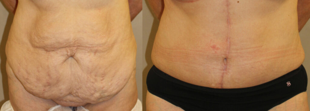 before and after image of fleur de abdominoplasty patient